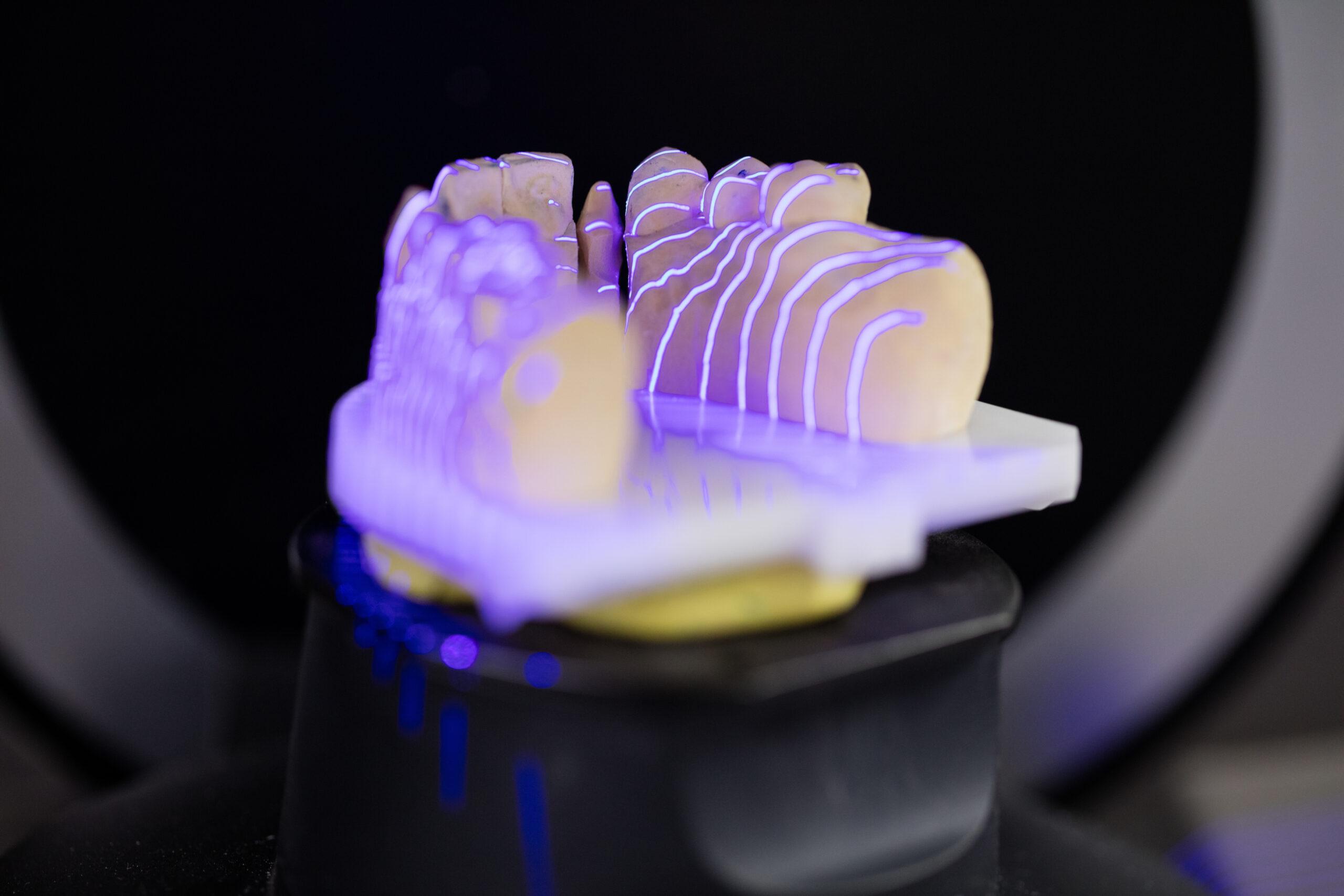 Dental crown mold inspection using structured light laser illumination